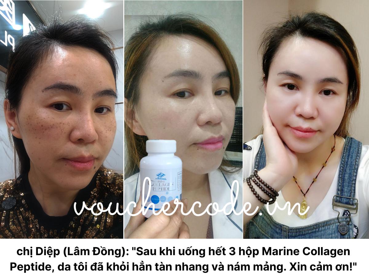 Uống Marine Collagen Peptide có khỏi nám không?